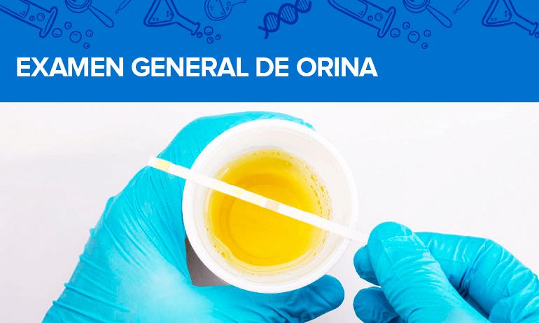 Examen General de Orina - EGO