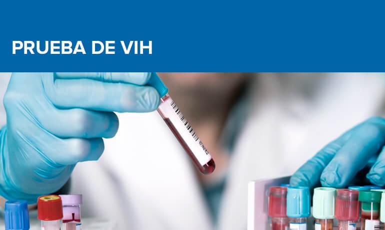 Prueba de VIH